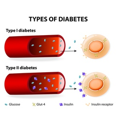 Types of Diabetes vector image vector image