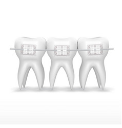 White clear teeth with ceramic braces vector