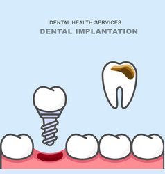 dental implant instead of carious tooth - teeth vector image