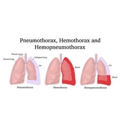 Pneumothorax hemothorax and hemopneumothorax vector