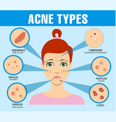 Acne types skin pimples blackheads and face vector