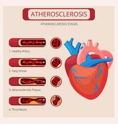 Atherosclerosis stages heart strokes thrombus vector