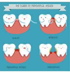 The stages of periodontal disease vector image