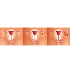 Three stages of ovarian cancer vector image