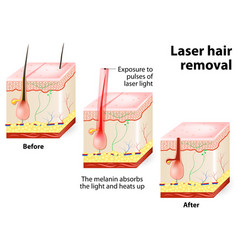 Laser hair removal vector