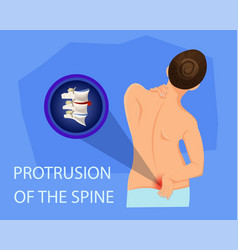 protrusion of spine vector image