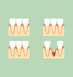 Step of periodontal disease or gingivitis vector