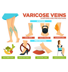 varicose veins symptoms and preventions poster vector image