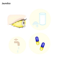Jaundice or Icterus with Prevention and Treatment vector