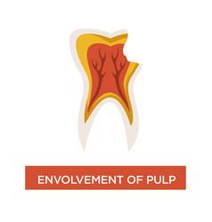 Envolvement pulp dental disease mouth cavity vector