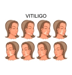 Vitiligo treatment before and after vector