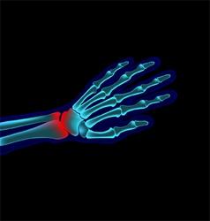 Hand pain vector