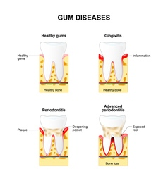 Gingivitis and Periodontitis vector image