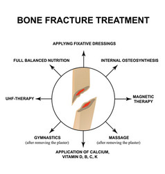 Treatment bone fractures bone fracture with vector
