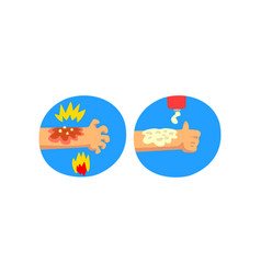Thermal skin burn of hand first aid and treatment vector