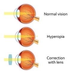 Hyperopia corrected by a plus lens vector