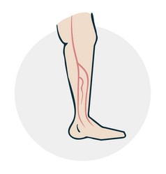 leg with varicose veins vector image vector image