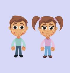 boy and girl with rash symptom vector image