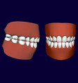 human jaw with teeth side and front view 3d vector image
