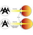 myopia vector image vector image