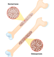 Osteoporosis vector image