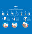 isometric prosthetic dentistry infographic concept vector image vector image