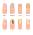 cartoon color nail diseases icon set vector image vector image