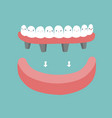 dentures teeth and tooth concept of dental vector image vector image