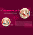 realistic traumatology medicine in 3d vector image vector image