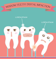 Wisdom Teeth Distal Impaction vector image vector image