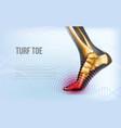 horizontal turf toe foot traumas banner vector image