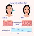 hyaluronic acid injection before and affect vector image vector image