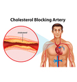 Ateriosclerosis vector image vector image