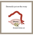 Dermoid cyst on the ovary Ovary Infographics vector image vector image