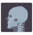 lateral radiograph of skull x-ray picture or vector image vector image