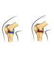 knee joint of healthy and damaged vector image vector image