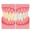 teeth whitening dental care before and after vector image vector image