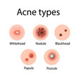 acne types cosmetology vector image vector image