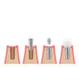 dental implantation process steps timeline vector image vector image