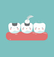 filling tooth teeth and tooth concept of dental vector image vector image
