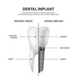 3d realistic render white tooth implant vector image vector image