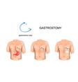 gastrostomy tube surgery vector image vector image