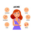 acne types infographic elements flat vector image vector image