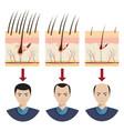 hair loss vector image