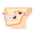 human head with with jaw abnormal eruption the vector image