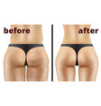 morbid obesity liposuction before and after vector image