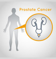 prostate cancer logo icon vector image vector image