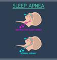 sleep apnea icon vector image