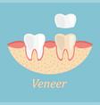 teeth procedure veneer restoration process vector image
