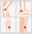 disease of the joints and bones vector image vector image
